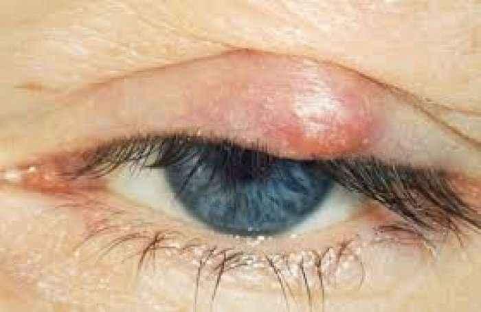 Elbthi në sy:Ja si ta hiqni përmes ilaçeve natyrale